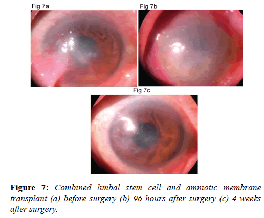 clinical-ophthalmology-amniotic-membrane