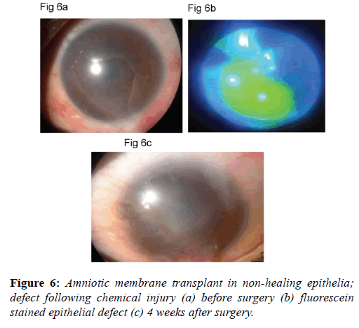 clinical-ophthalmology-autolimbal-stem