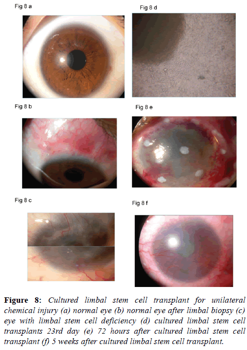 clinical-ophthalmology-cell-transplant