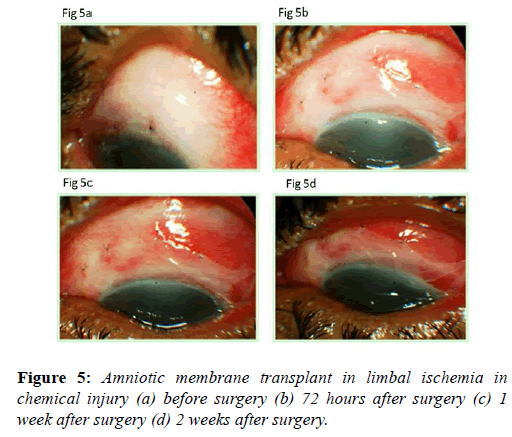clinical-ophthalmology-chemical-injury