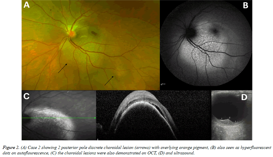 clinical-ophthalmology-discrete-choroidal