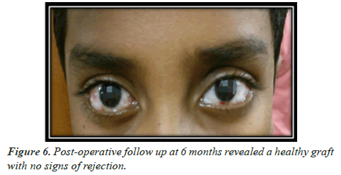 clinical-ophthalmology-healthy