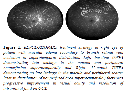 clinical-ophthalmology-macular-edema