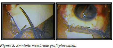 clinical-ophthalmology-membrane