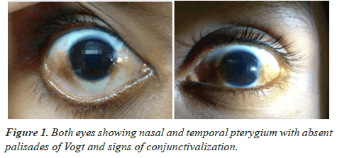 clinical-ophthalmology-nasal