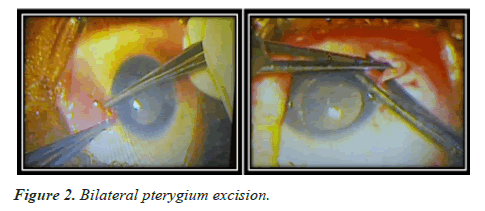 clinical-ophthalmology-pterygium