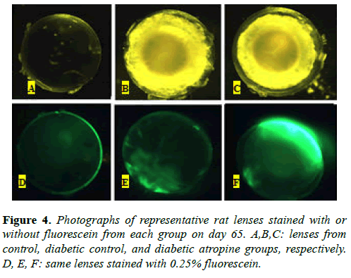 clinical-ophthalmology-science-diabetic