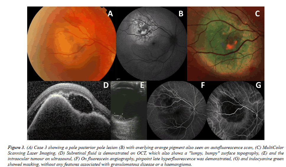 clinical-ophthalmology-surface-topography