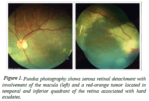 clinical-ophthalmology-vision-Fundus-photography