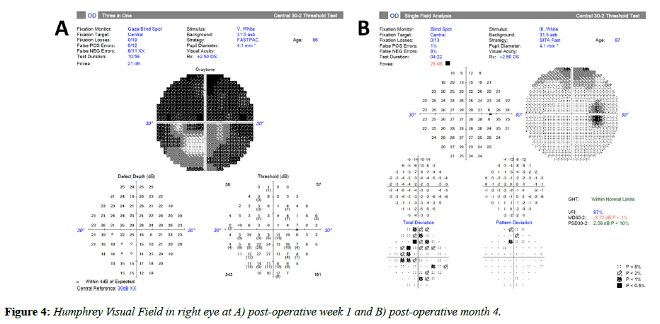 clinical-ophthalmology-vision-Humphrey-Visual