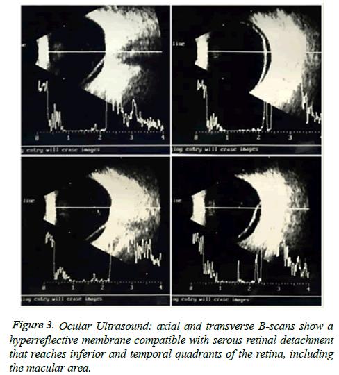 clinical-ophthalmology-vision-Ocular-Ultrasound