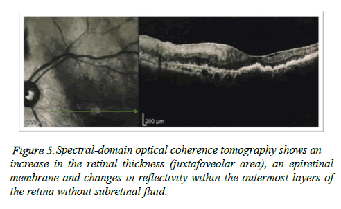 clinical-ophthalmology-vision-Spectral-domain