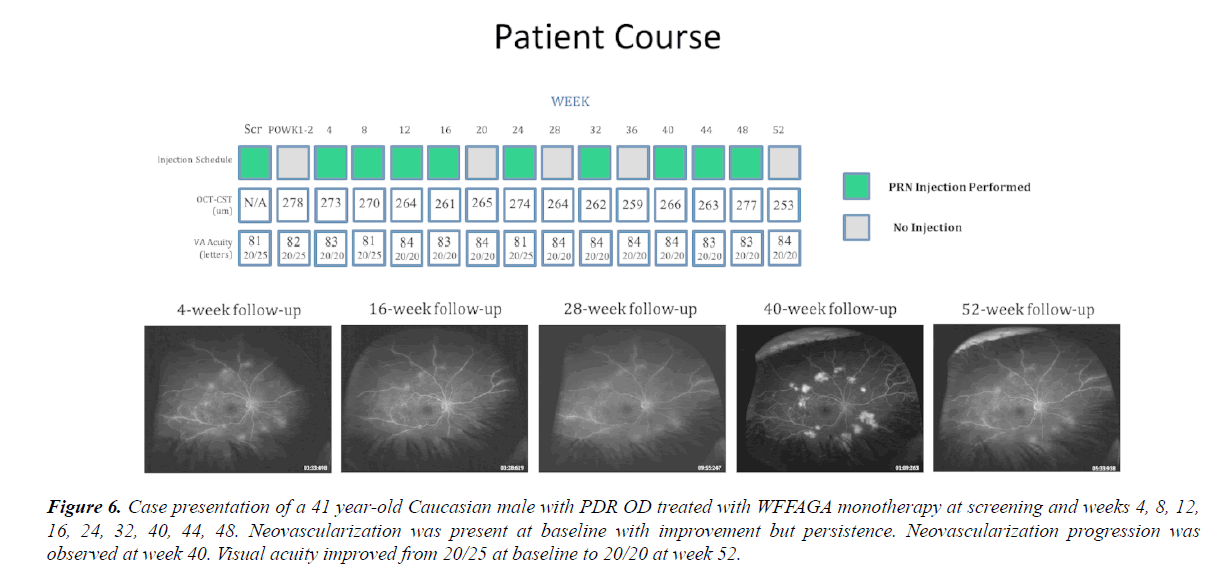 clinical-ophthalmology-vision-science-Caucasian