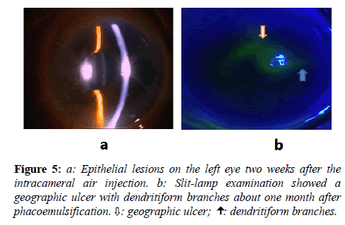 clinical-ophthalmology-vision-science-Epithelial-lesions