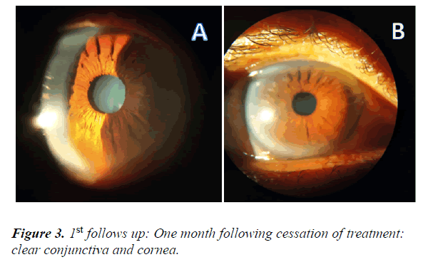 clinical-ophthalmology-vision-science-cessation