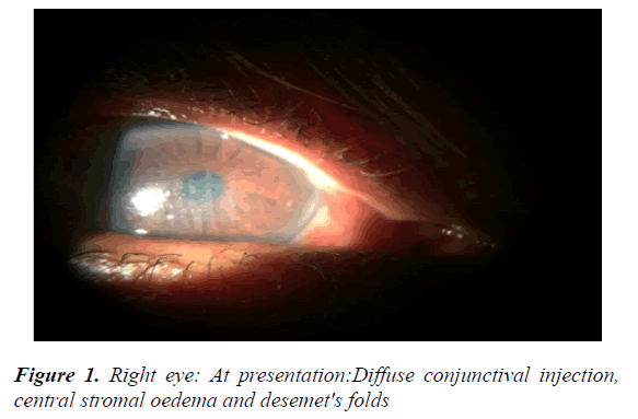 clinical-ophthalmology-vision-science-conjunctival
