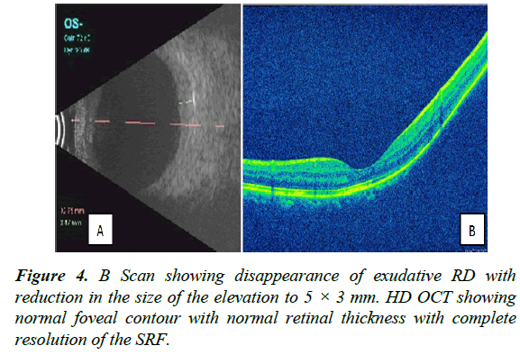 clinical-ophthalmology-vision-science-disappearance
