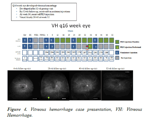 clinical-ophthalmology-vision-science-hemorrhage