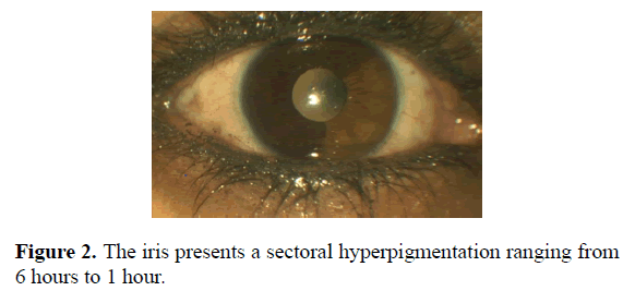 clinical-ophthalmology-vision-science-hyperpigmentation