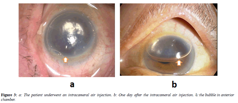 clinical-ophthalmology-vision-science-intracameral-air