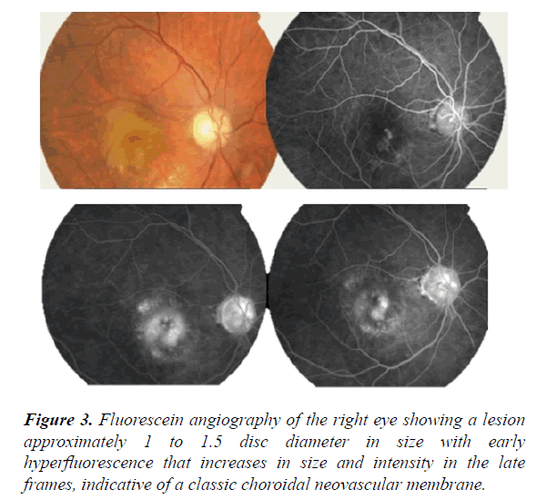 clinical-ophthalmology-vision-science-lesion