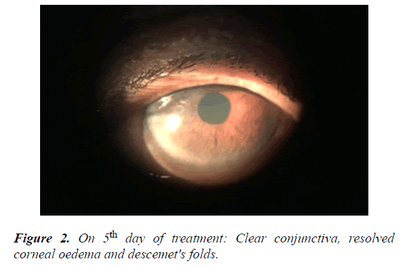 clinical-ophthalmology-vision-science-oedema