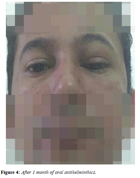 clinical-ophthalmology-vision-science-oral-antihelminthics