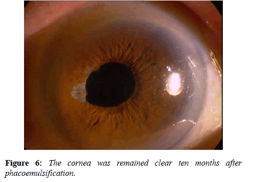 clinical-ophthalmology-vision-science-phacoemulsification