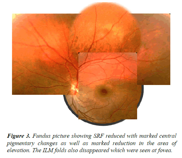 clinical-ophthalmology-vision-science-reduced