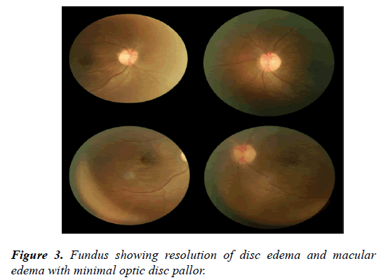 clinical-ophthalmology-vision-science-resolution