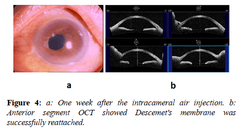 clinical-ophthalmology-vision-science-successfully-reattached