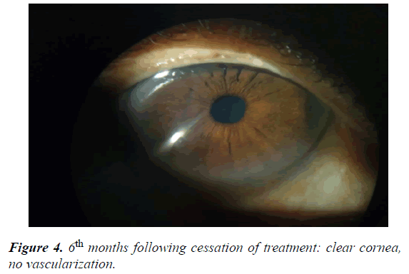 clinical-ophthalmology-vision-science-vascularization