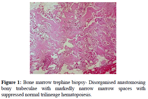 clinical-pathology-Bone-marrow