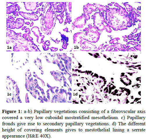 clinical-pathology-Papillary-vegetations