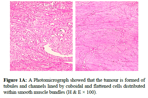 clinical-pathology-flattened-cells