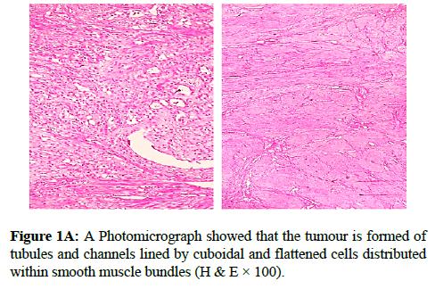 clinical-pathology-flattened-cells