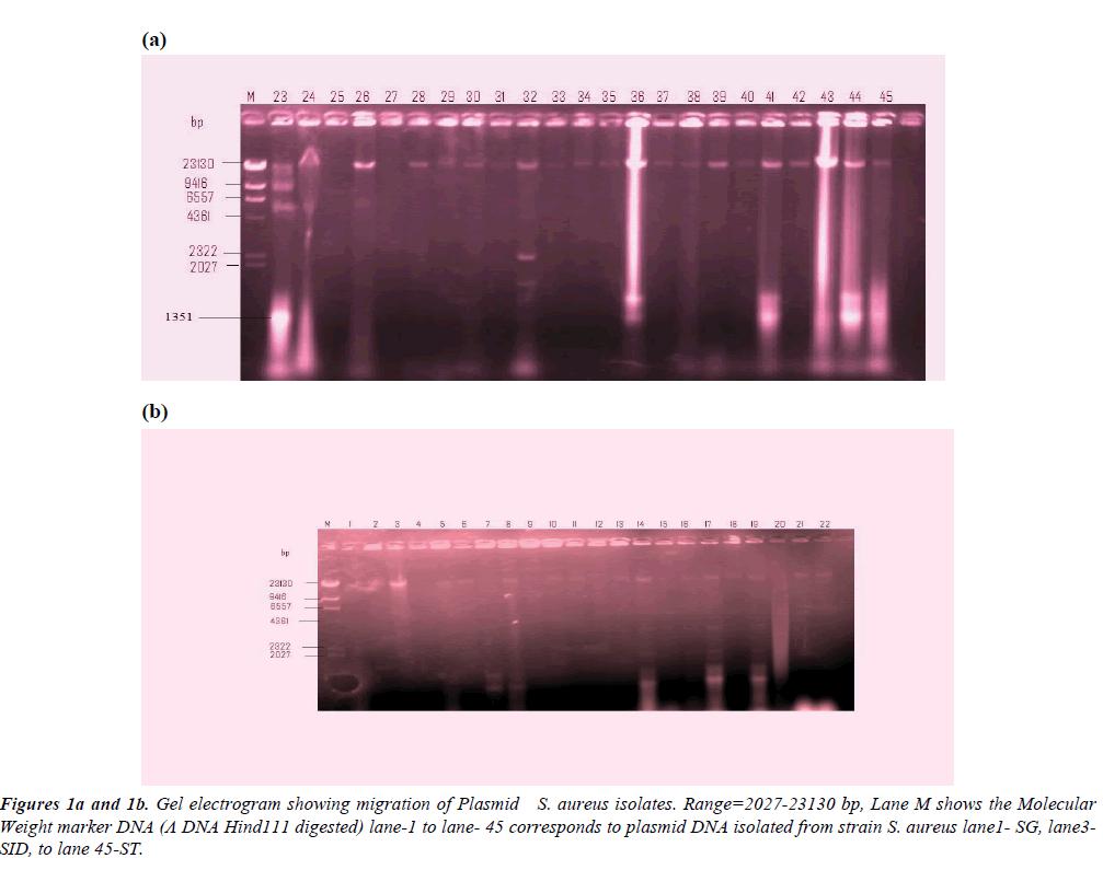 clinical-pathology-laboratory-medicine-electrogram-showing-migration-Plasmid
