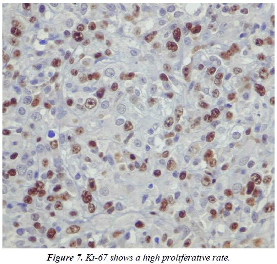 clinical-pathology-laboratory-medicine-high-proliferative