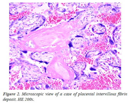 clinical-pathology-laboratory-medicine-placental-intervillous-fibrin