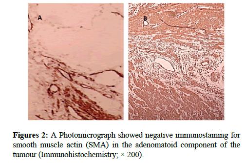 clinical-pathology-muscle-actin