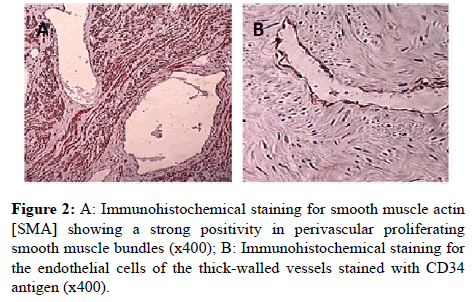 clinical-pathology-muscle-bundles