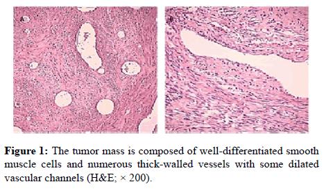 clinical-pathology-tumor-mass