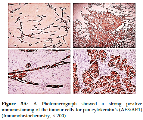 clinical-pathology-tumour-cells
