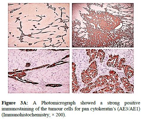 clinical-pathology-tumour-cells