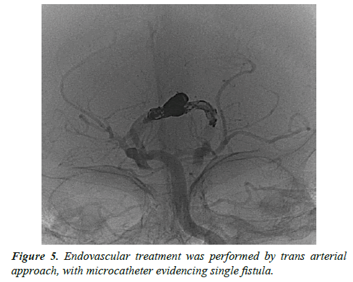 cognitive-neuroscience-endovascular