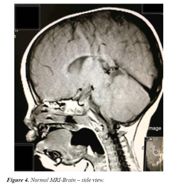 current-pediatric-research-side-view