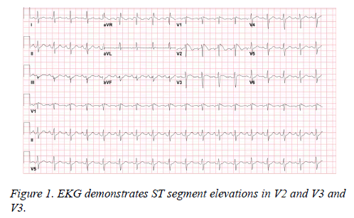 current-trends-cardiology-EKG-demonstrates