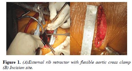 current-trends-cardiology-External