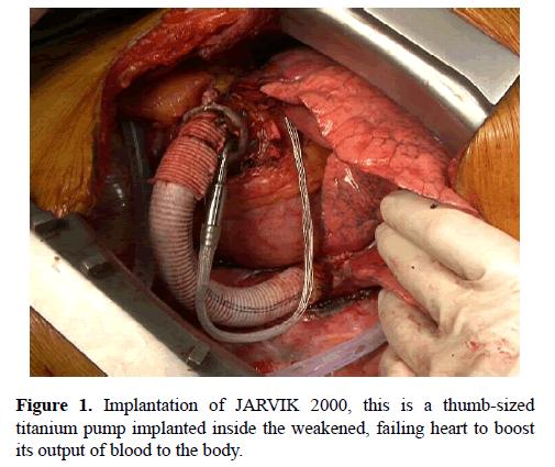 current-trends-cardiology-Implantation-JARVIK