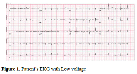 current-trends-cardiology-Low-voltage